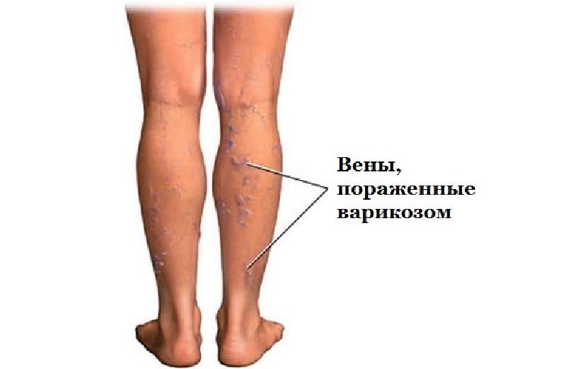 Болезни вен ногах фото