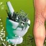 Профилактика варикоза: питание и образ жизни